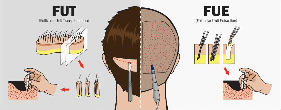 Presadjivanje kose